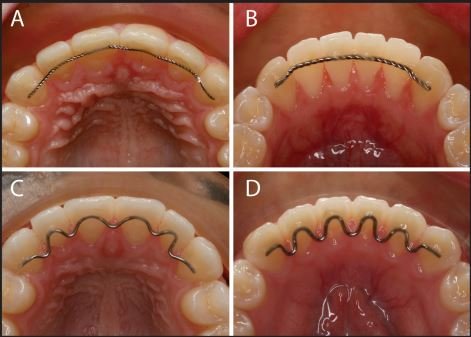 Maintaining Your Smile After Orthodontic Treatment