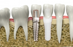 ceramic dental implant titanium dental implant