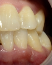 after professional dental cleaning