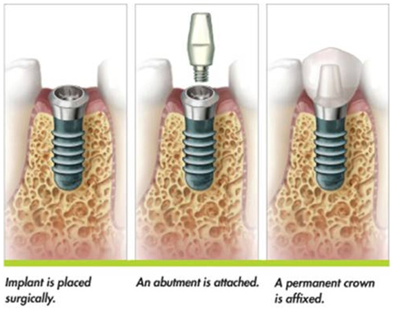 dental implants at Drummyone Dentist