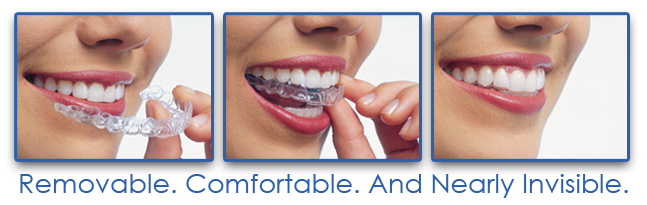 Invisalign Straighten Teeth Without Braces Drummoyne