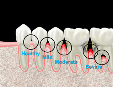 gum disease periodontal disease