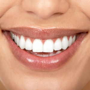 veneers at drummoyne